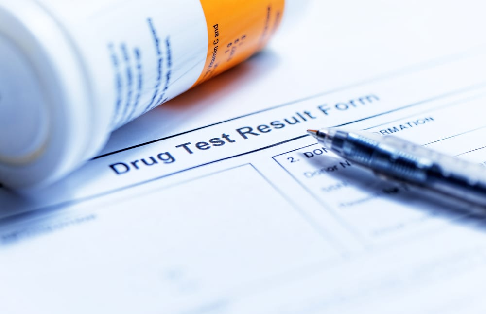 drug test result form to answer the question how long does marijuana stay in your urine