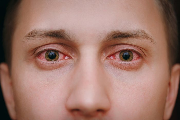 Why do your eyes get red when you smoke weed? man with red, bloodshot eyes